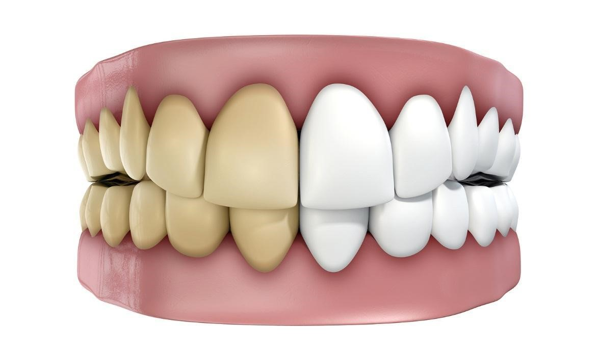 Natural A Tooth Color